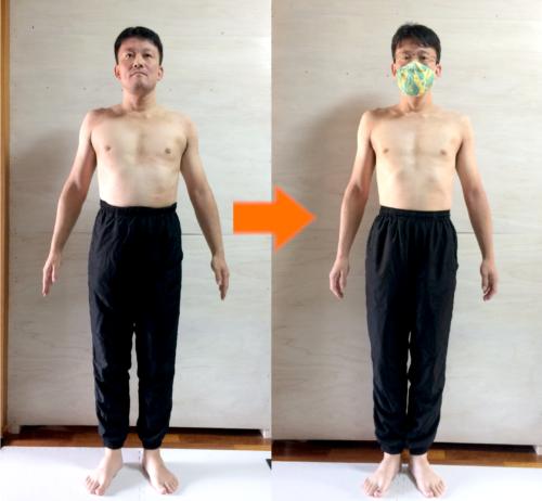 M様(男性43歳)のビフォーアフターの画像(正面)