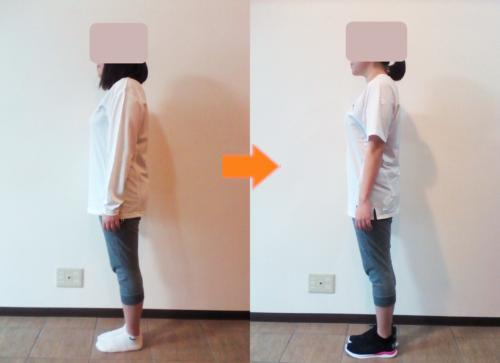 N様(女性24歳)のビフォーアフターの画像(側面)